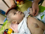 bebelus cu inima in afara corpului - Getty