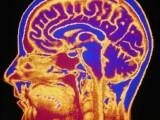 Studiu: creierul barbatului imbatraneste mai repede decat cel al femeilor. Parkinsonul, mai frecvent printre reprezentantii sexului tare