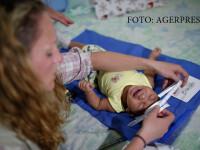copil cu microcefalie masurat