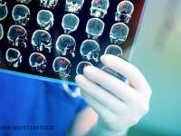 un medic examineaza o encefalograma