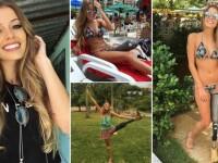 Curajoasa zilei | Un model brazilian nu a lasat un accident teribil sa-i distruga cariera: a ramas fara un picior, dar continua sa pozeze