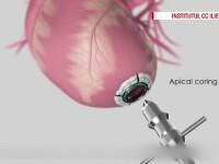 inima artificiala