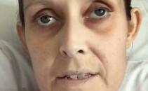 lisa cancer