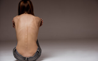anorexie - Shutterstock
