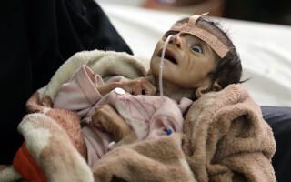 copil malnutrit - Agerpres