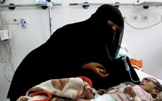 copil malnutrit Yemen - Agerpres