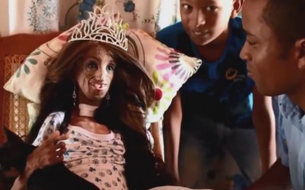 fata progeria