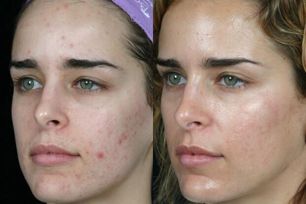 Dermatologie cauterizare negi