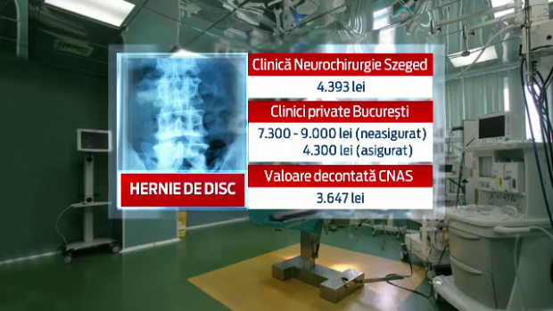 Cat costa o operatie de hernie de disc 2021