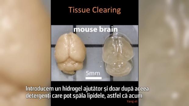 creier transparent