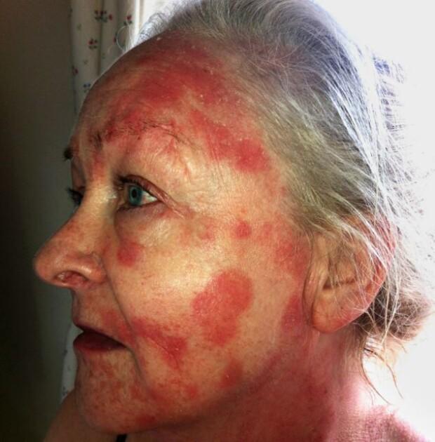 steroid cream damage skin