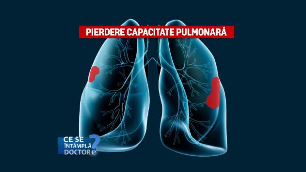 capacitatea pulmonara