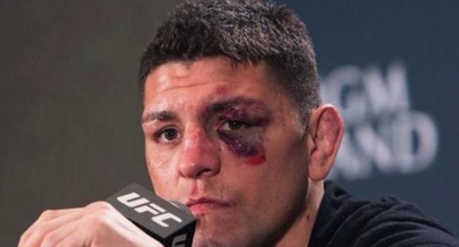 Patru barbati l-au atacat pe luptatorul din MMA, Nick Diaz, intr-un club: