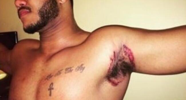Sute de barbati se plang ca au patit asta din cauza unui deodorant care se vinde si in Romania
