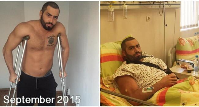 Transformarea senzationala a acestui culturist: anul trecut a suferit 4 operatii, acum arata de-a dreptul fenomenal