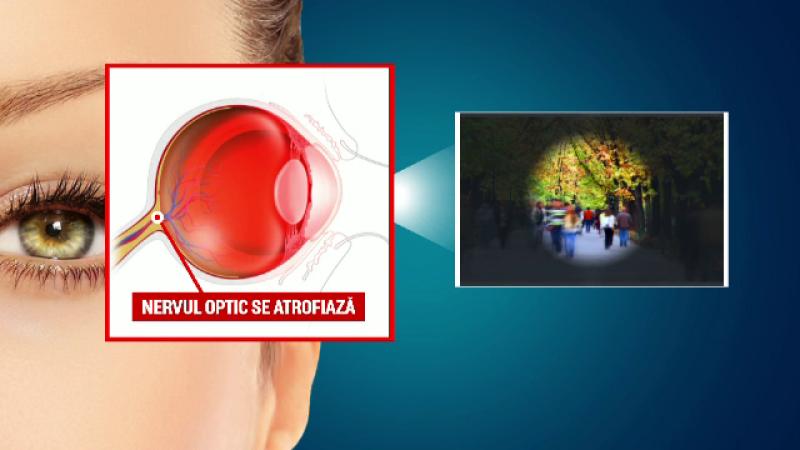 140.000 de romani sufera de glaucom. Netratata la timp, boala poate provoca in scurt timp orbirea