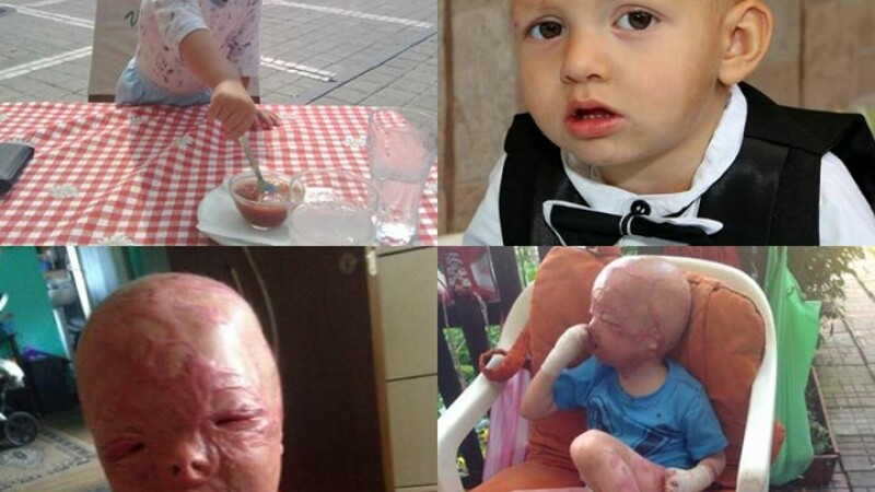 Alex, baietelul de 3 ani desfigurat de arsuri, operat din nou in Turcia. Chipul lui, reconstruit dupa mai multe interventii