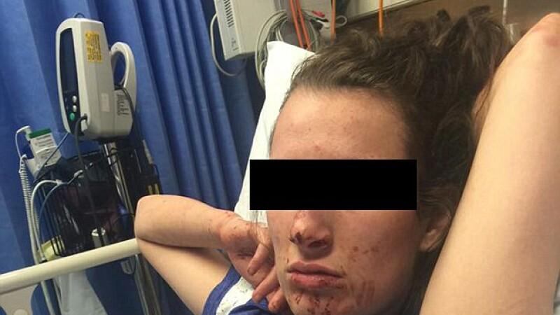 O tanara de 19 ani a ajuns desfigurata, dupa o cearta aprinsa cu iubitul. Imaginile au starnit revolta pe internet.FOTO