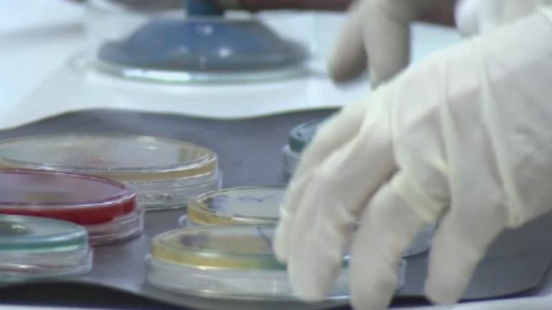 Ministerul Sanatatii ia masuri suplimentare pentru limitarea epidemiei de rujeola. Sunt opt decese confirmate