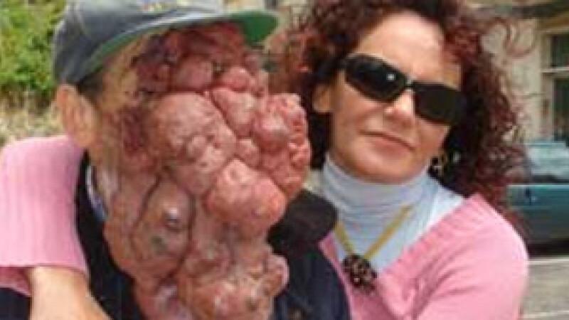 Omul fara chip! Desfigurat de o tumoare de 3 kilograme. Vezi VIDEO