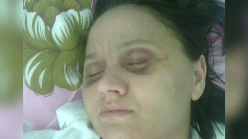 Barbatul cunoscut pe internet de o femeie din Timis a bagat-o in spital. Cum arata victima dupa