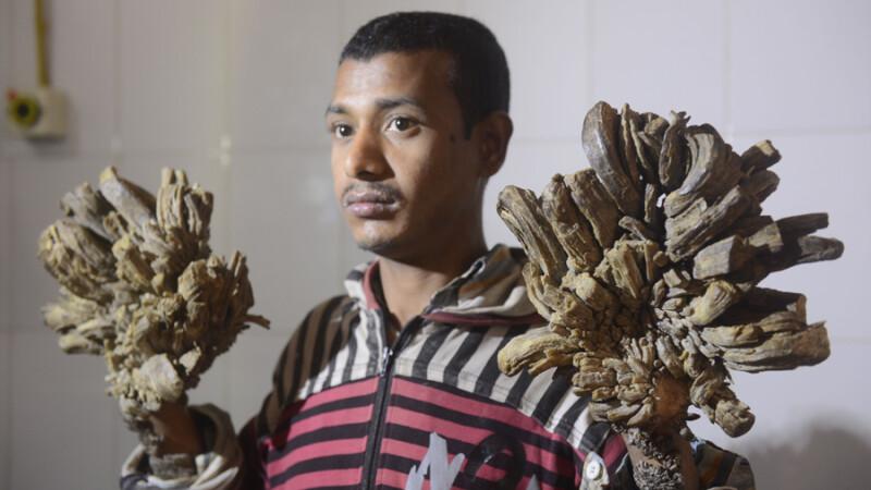 Un tanar din Bangladesh se transforma incet-incet in COPAC. Un caz similar a fost rezolvat acum cativa ani de medicii romani