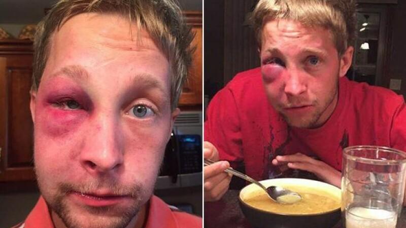 A fost batut crunt si lasat sa zaca pe asfalt doar pentru ca sufera de autism. Raspunsul incredibil al acestui tanar