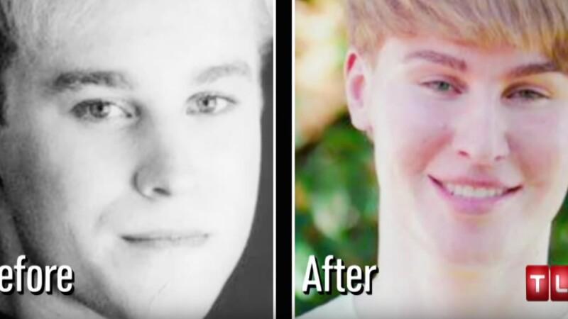 A murit dupa ce a cheltuit o suma uriasa ca sa arate ca Justin Bieber. Care a fost cauza decesului