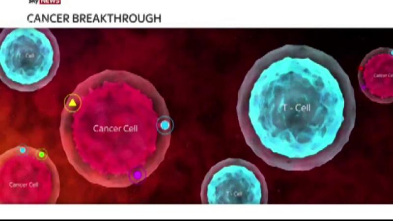 Descoperire extraordinara in tratarea cancerului la san. Rezultate in doar 11 zile, fara chimioterapie