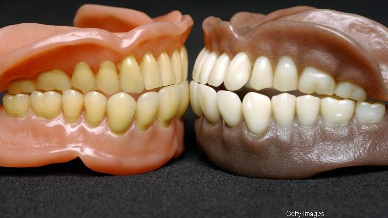 Dacii si romanii nu aveau nevoie de dentist. Care este alimentul pe care nu il consumau, iar noi il mancam zilnic