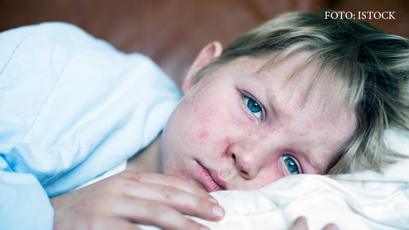 Epidemia de rujeola din Romania risca sa se extinda in toata Europa. Un copil de nici 2 ani a murit marti din cauza bolii