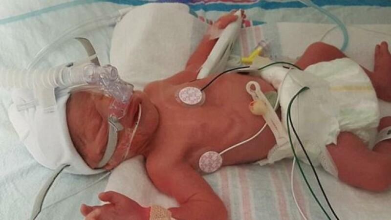 O asistenta a adormit cu un bebelus in brate, l-a scapat pe jos si i-a spart capul. Mama a aflat de situatie la externare