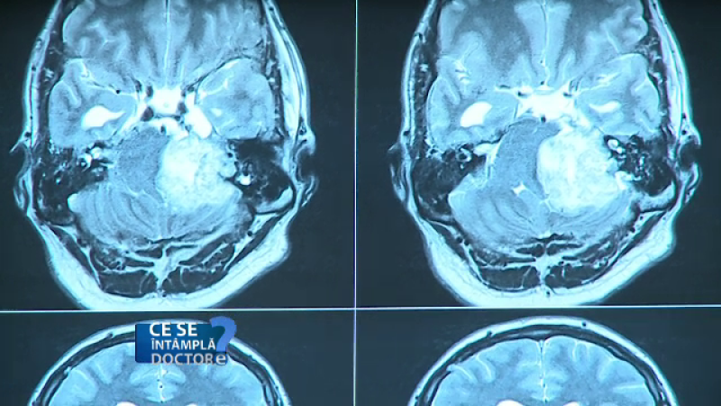 Cum transforma alcoolul materia cenusie din creier in apa. Fenomenul e similar imbatranirii, doar ca mai rapid
