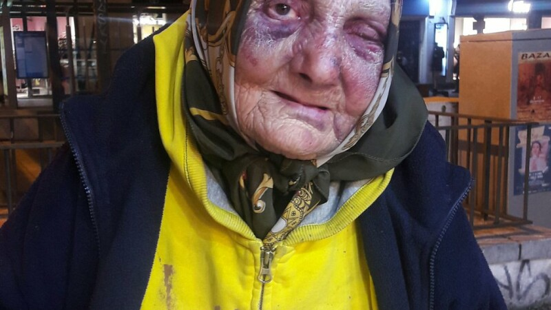 Bătrână fără adăpost din România desfigurată în urma unui atac rasist, la Madrid