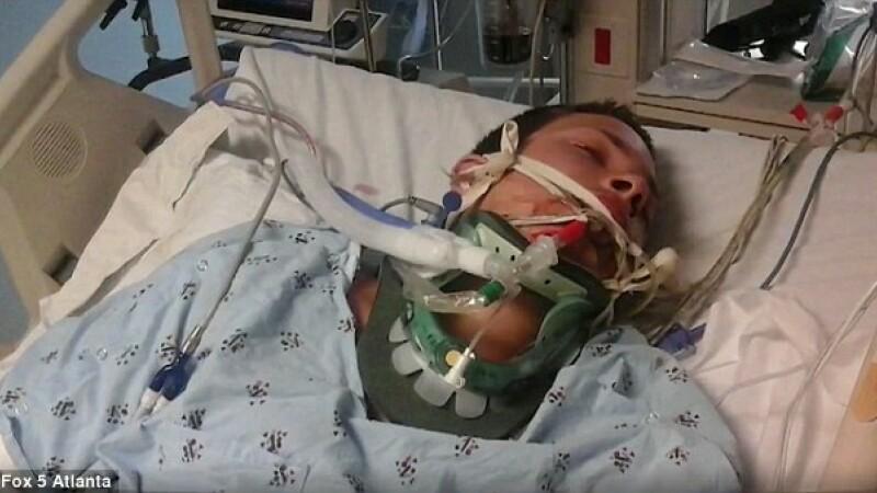 A fost la un pas de moarte dupa ce tigara electronica i-a explodat in gura. VIDEO