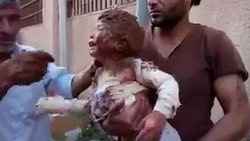 17 morti in urma unor bombardamente din Siria. Momentul in care o fetita este data cu noroi pe rani pentru a-i calma agonia