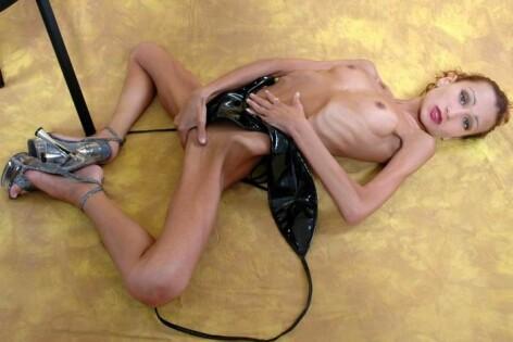 анорексия фото голых девушек