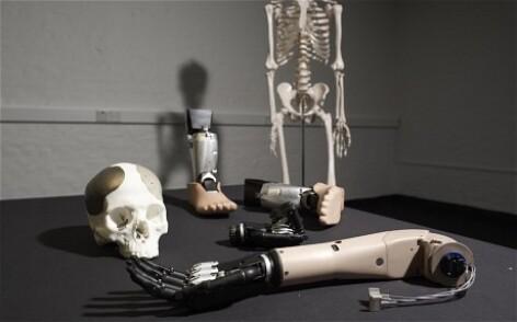 membre bionice