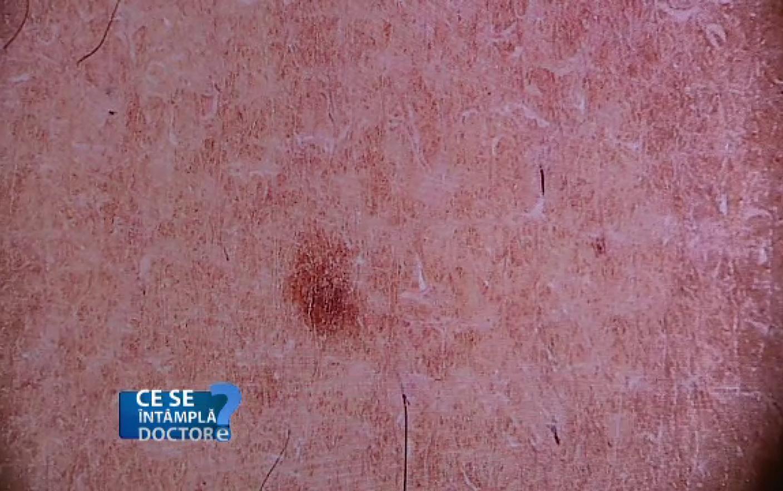 cancerul de piele este periculos