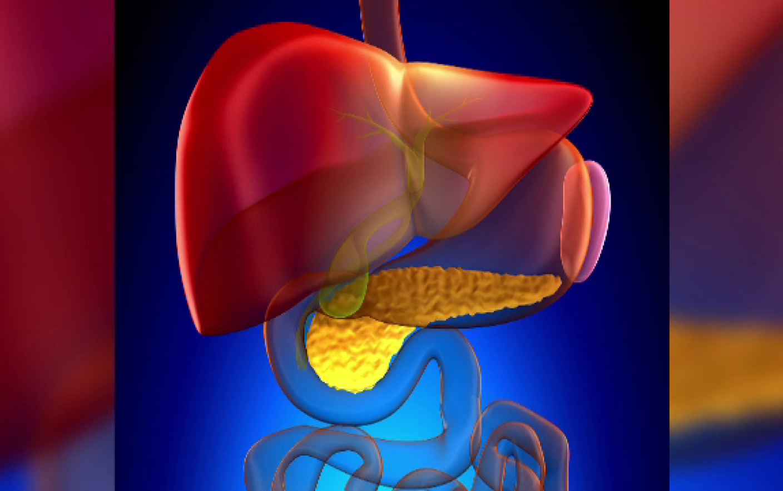 cum să îndepărtați grăsimea din pancreas)