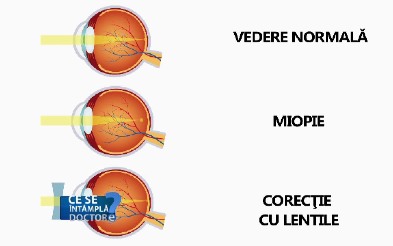 miopia este cea mai înaltă)