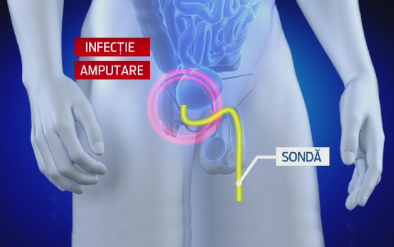 amputarea penisului