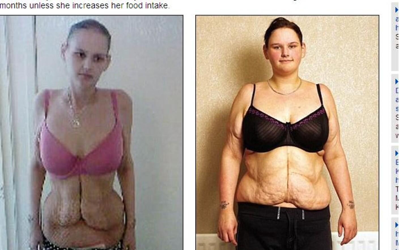 pierde femela grasa