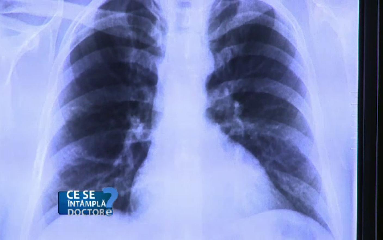 Infectie plamani simptome