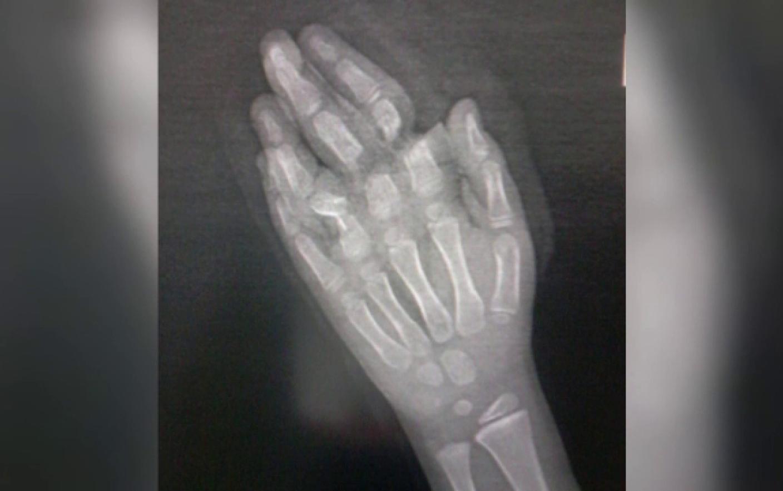 cum să tratezi o articulație ruptă pe deget)