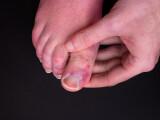 """Explicațiile cercetătorilor pentru apariția """"degetului Covid"""", simptomul extrem de rar al coronavirusului"""