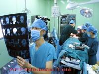 FACE OFF: S-a realizat primul transplant facial TOTAL! Vezi VIDEO!