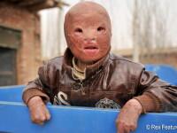 Clipa fatala care l-a transformat intr-o masca vie. Viitor sumbru pentru un copil de 6 ani
