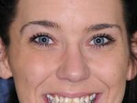 FOTO. La 25 de ani, refuza sa zambeasca din cauza dintilor. Transformarea este uimitoare