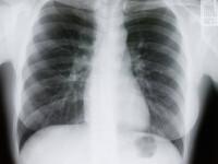 Descoperirea facuta in stomacul unui baiat de 4 ani din India. Avea 1,21 metri si i-a socat pe medici. FOTO